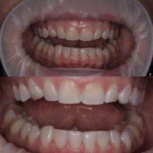 Отбеливание зубов ZOOM4, капы, профессиональная чистка Air Flow, ультразвуком Краснодар