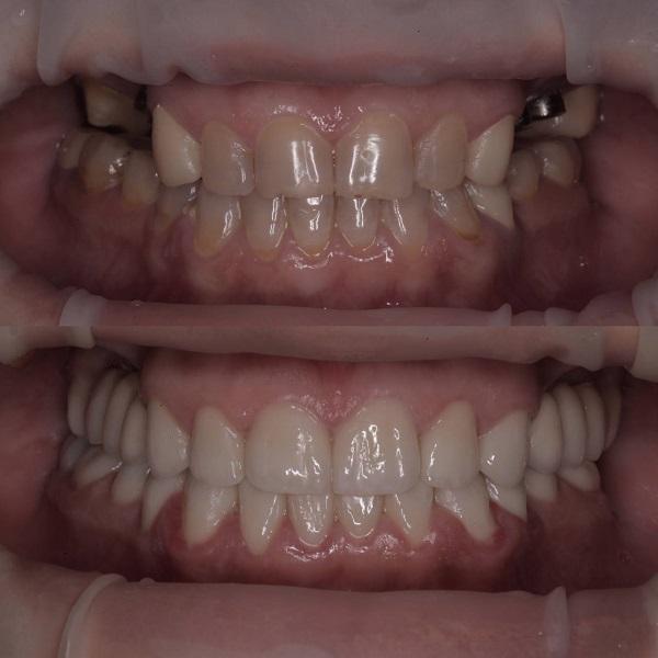 Зубные импланты стоматология в Краснодаре
