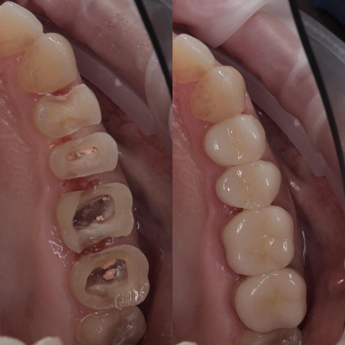 Протезирование зубов виниры коронки съёмные протезы Краснодар