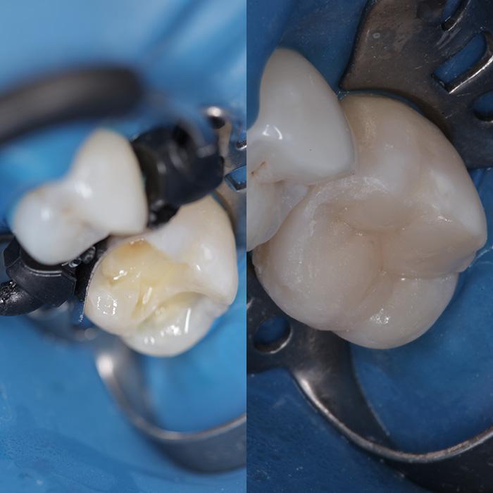 Лечение зубов кариеса, сколов, восстановление, реставрация зубов Краснодар